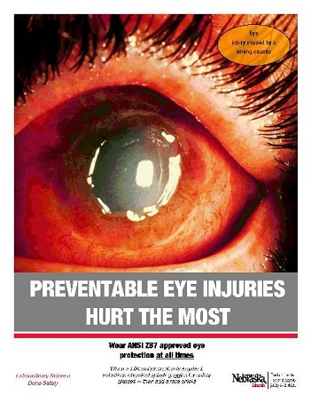 Image of Eye injury prevention poster with a injured eyeball