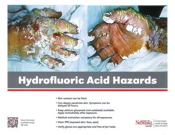 Hydrofluoric Acid Hazards Posters showing disastrous effects of coming into contact with Hydrofluoric Acid